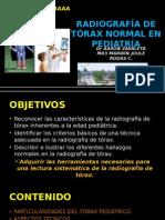RX TORAX PEDITRICA.pptx