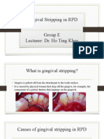 GROUP E -Gingival Stripping in RPD (1)