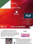 Hipertrofia-Atrofia
