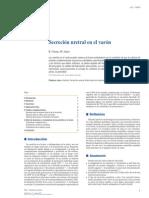Secrecion Uretral en El Varon2015