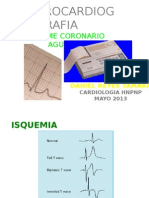 c5 Sjb Hnpnp Sindrome Coronario Agudo