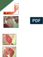 Imagenes Sin Rotular Embrio 2 Parcial