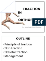 Traction in Orthopaedics - Mus'