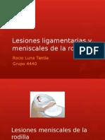 Lesiones Ligamentarias y Meniscales de La Rodilla