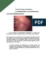 Protocolo de Lupus Eritematoso