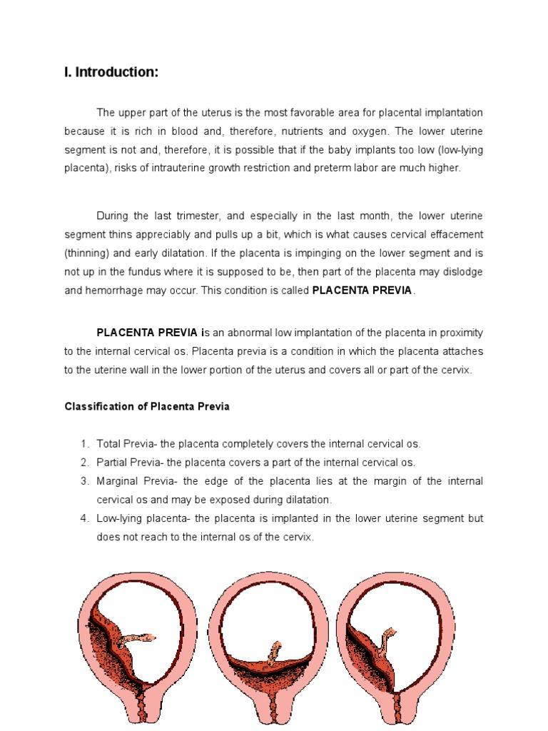 case study placenta previa totalis