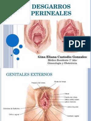 desgarro perineal grado iii