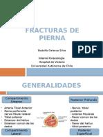 Fracturas de Pierna