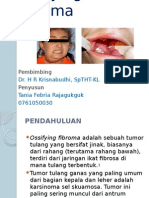 Ossifying Fibroma