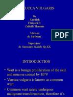 VERUCCA VULGARIS presentation.ppt