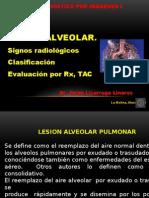Semana 2 Clase 2 Lesión Alveolar audio.pptx