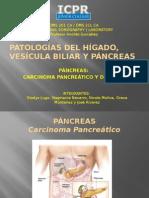 pancreas2