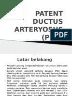 patent ductus arterius