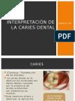 interpretaciondelacariesdentalexpofinalmajo-131022223426-phpapp02.pptx