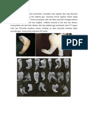 manifestări inițiale ale artrozei deformante a articulației șoldului durere la ridicarea articulației genunchiului