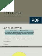 Leucemia TIPOS