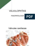 Valvulopatia
