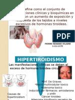 Hipertiroidismo expo.pptx