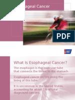 Esophageal+Cancer+2015
