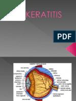 Keratitis Ppt presentasi