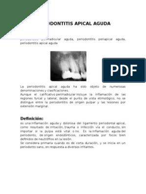 Signos y sintomas de periodontitis apical aguda