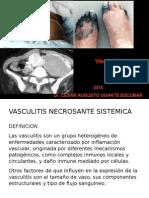 Vasculitis 2015a