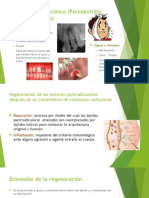 Absceso Apical Crónico (Periodontitis Apical Supurativa)