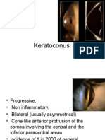 Keratoconus