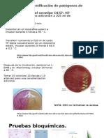Identificacion de E. Coli Patogena