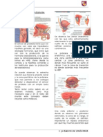 1. Cancer de Prostata