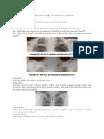 Cara Baca Rothorax