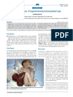 AMJI 02 Web Case Report Giant Omphalocele Congenital Anomaly Containing Bowel Loops