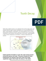 Tooth+Decay