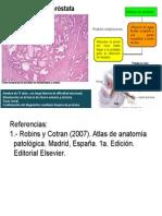 Patología - Hiperplasia de Próstata