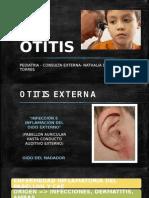 Otitis en pediatria