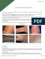 Lichen Simplex / Neurodermatitis