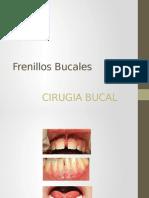 Frenillos Bucalesfre