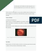 Caso Clinico Retinosis Pigmentaria Cv