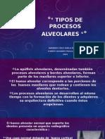 Tipos de Procesos Alveolares