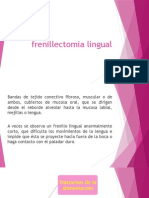 Frenillectomia Lingual