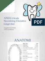 ANUG (Acute Necrotizing Ulcerative Gingivitis)