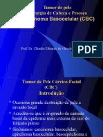 AULA 1 - Carcinoma Basocelular