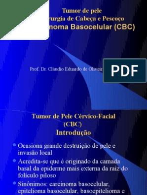 carcinoma prostata epidemiologia 2020 slide