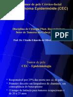 AULA 1 - Carcinoma Espinocelular