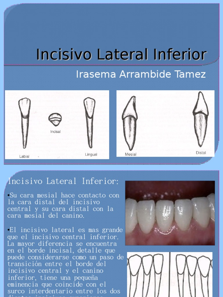Incisivo Lateral Inferior