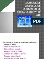 Montaje de Modelos de Estudio en El Articulador