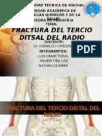 Fractura Del Tercio Distal Del Radio