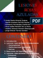 Seminario - Lesiones Rojas - Final