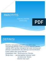 Parotitis