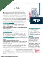 arteriopatia periferica